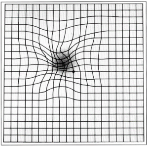 An Amsler Grid as seen by a patient with ARMD