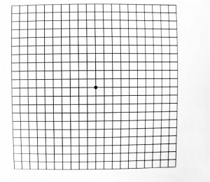 Amsler Grid as seen by a patient with a normal macula
