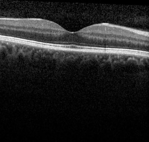 An OCT scan showing a normal macula