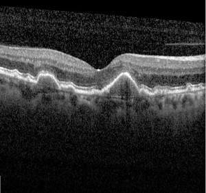 An OCT scan showing dry ARMD