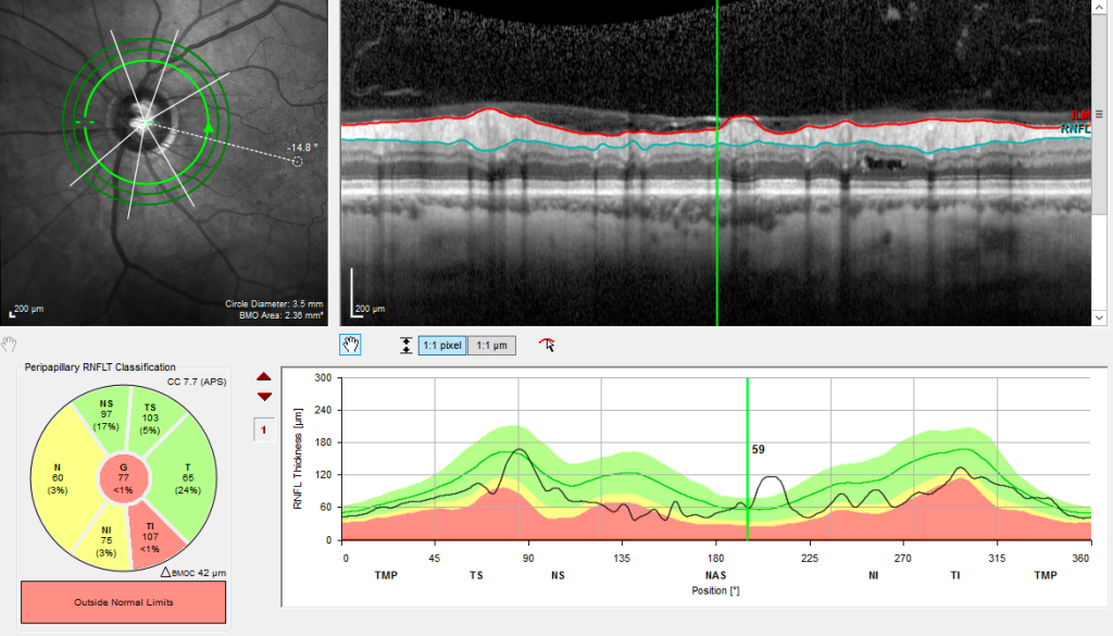 An OCT scan of an optic nerve in a patient with glaucoma
