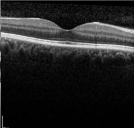 An OCT scan of a normal macula