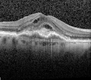 Macula haemorrhage from wet macular degeneration