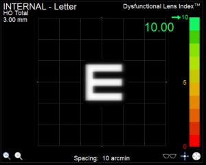 Dysfunctional lens index result