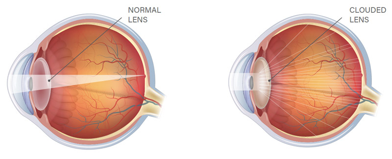 Normal Eye compared to Cataract Eye