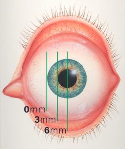 Pterygium Sizes in the Eye