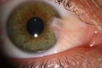 Pterygium Before Surgery